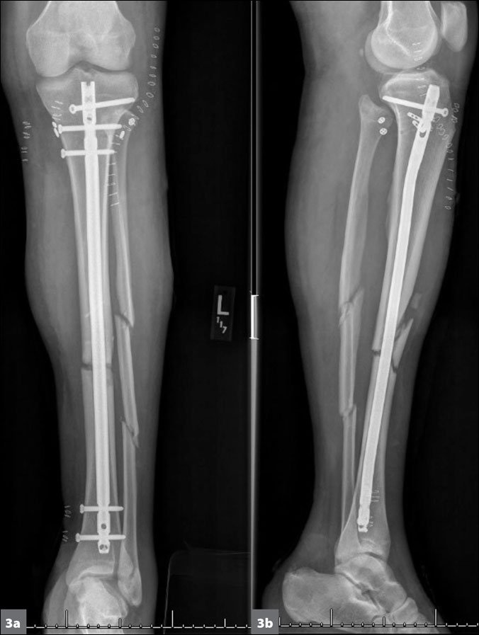 A construction worker sustained an open fracture after ...