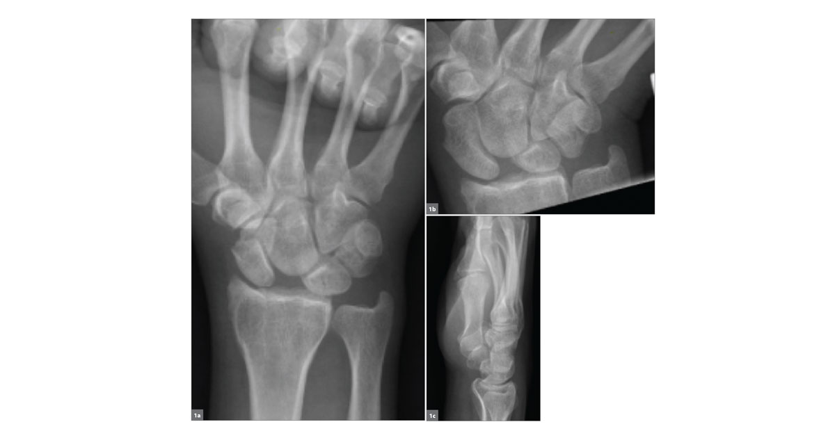 scaphoid fracture deutsch