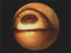 Limbal stem cell deficiency in a contact lens wearer.