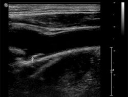 Carotid Doppler ultrasonography in this patient. A few atheromatous plaques are seen in the right carotid bulb and bilateral proximal ICA. There is no hemodynamically significant stenosis on either side.