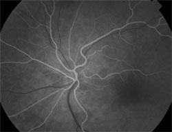 Early phase shows fluorescein angiography.