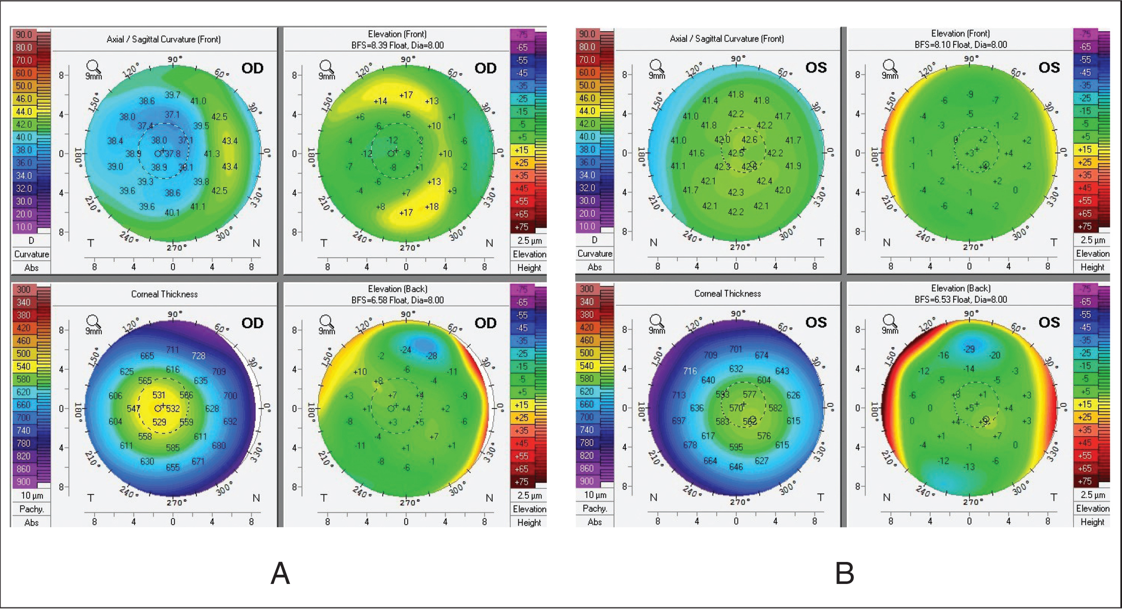 Long Term Effects After Pediatric Lasik For Anisometropic