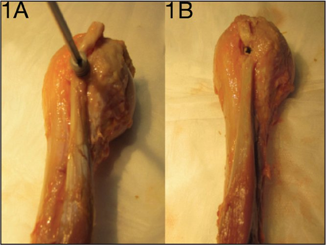 Photographs of suprapectoral interference screw tenodesis. The interference screw is inserted over the long head of the biceps tendon (A). Completed interference screw fixation (B).