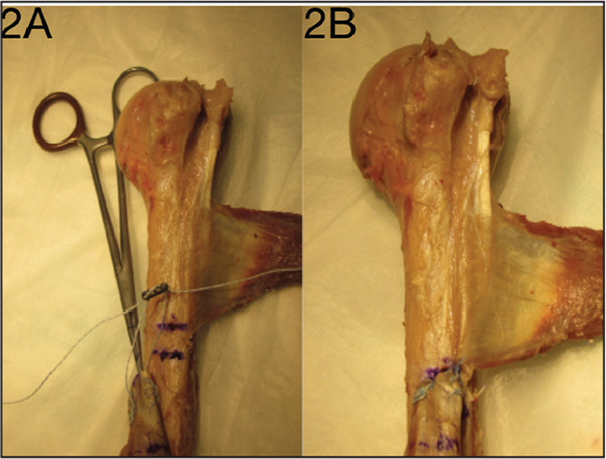 Photographs of cortical button tenodesis. A Krackow stitch is seen at the distal end of the bisected long head of the biceps tendon along with the cortical button (A). Completed cortical button fixation (B).