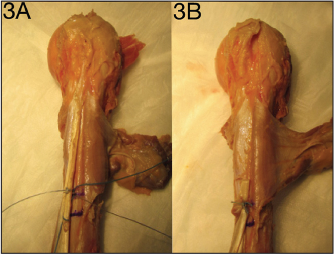Photographs of double-loaded anchor fixation. Sutures are passed through the tendon in a lasso configuration 1 cm and 2 cm proximal to the musculotendinous junction (A). Completed double-loaded anchor tenodesis with the excess tendon excised 1 cm proximal to fixation (B).