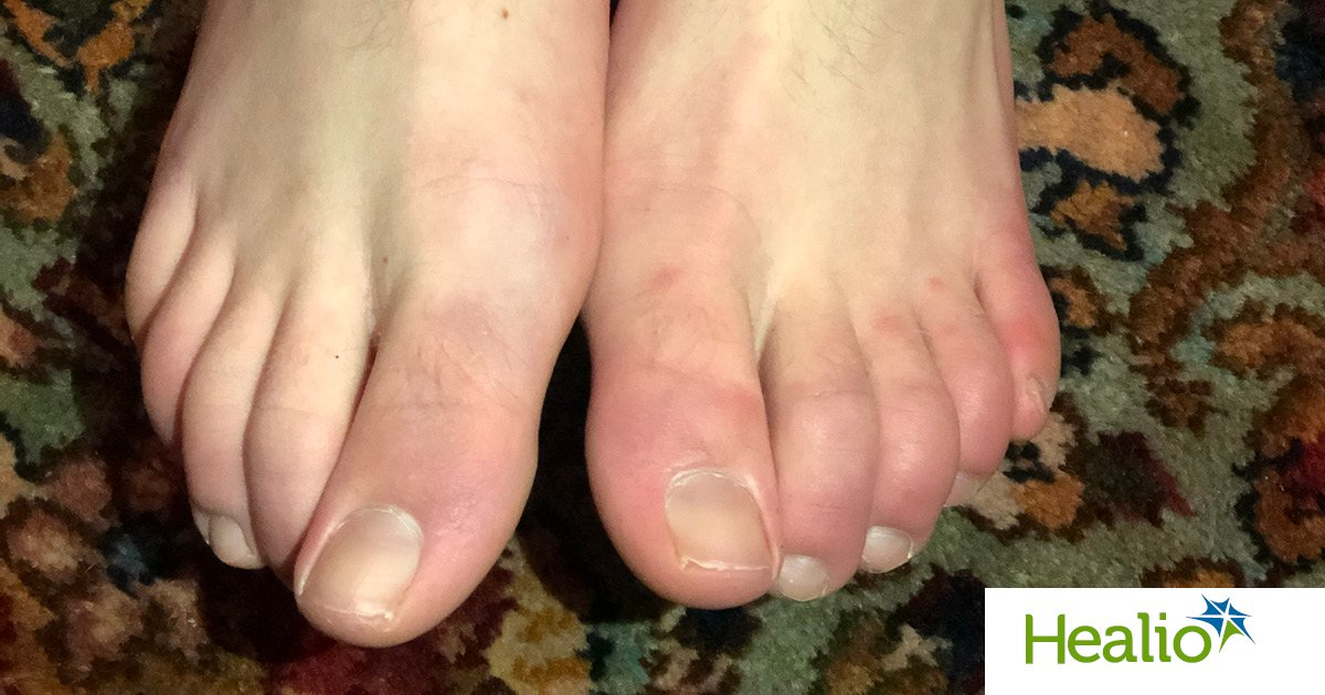 COVID-toes,' tracking dermatological symptoms of COVID-19
