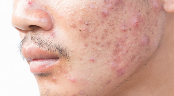 Acne in a young man