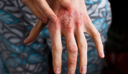 Atopic dermatitis on the hand.