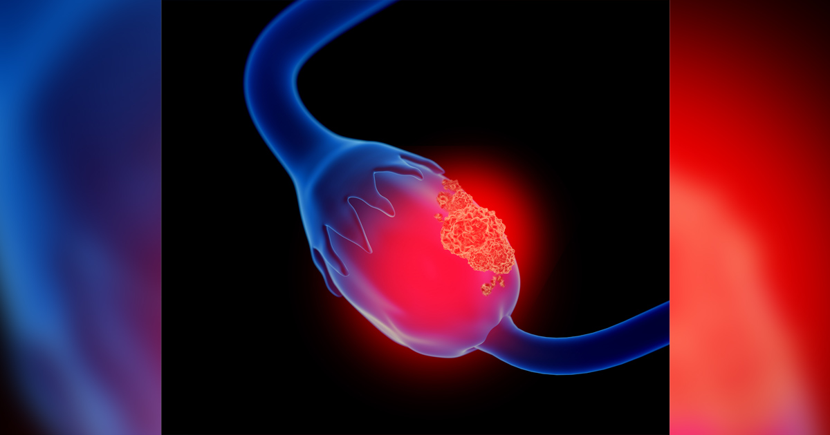 3d illustration of ovarian cancer