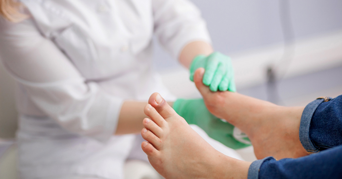 Researchers Push For Revision Of Idsa Diabetic Foot Infection