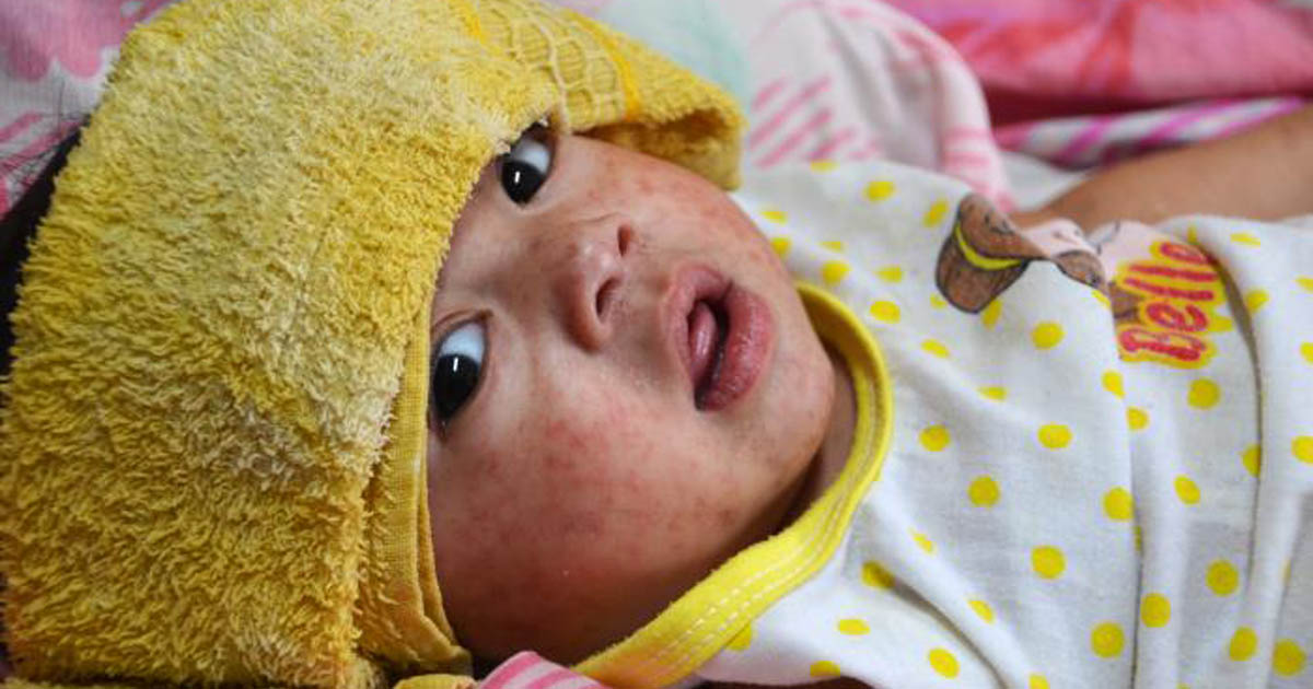 Child with measles