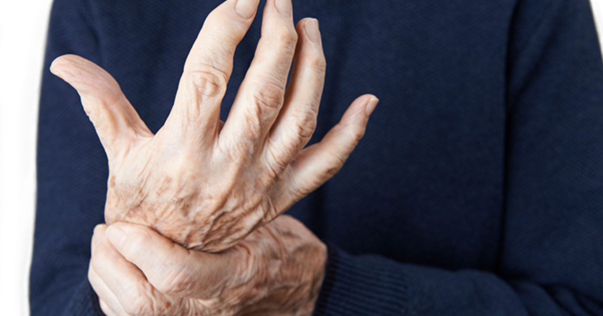 Image of arthritic hand