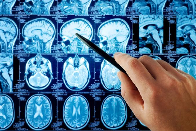 brain mri scan.'